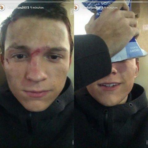 Chàng diễn viên trẻ lại tiếp tục bị gãy mũi do một tai nạn